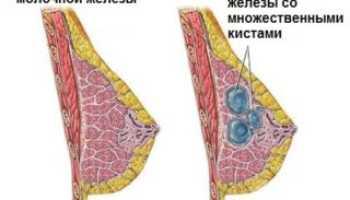 Может ли киста молочной железы перерасти в рак