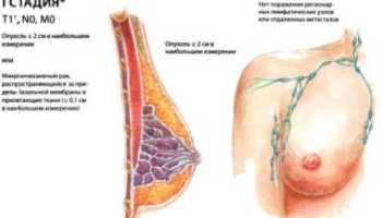 Онкология молочной железы 1 стадия