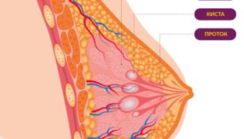 Лечение кист молочной железы