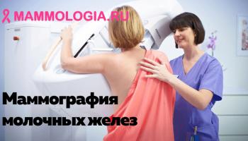 Как делается маммография молочных желез