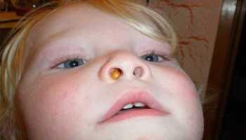 Полипы у ребенка в носу