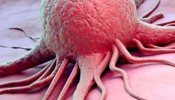 Заговоры при раке молочной железы