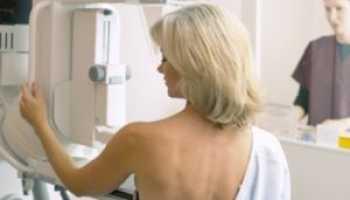 Фиброзно кистозная аденома молочной железы