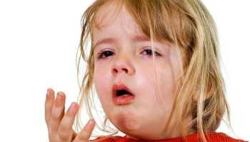 Долго не проходит сухой кашель у ребенка