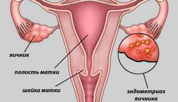 Эндометриоз яичника лечение