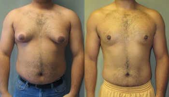 Гипертрофия молочной железы у мужчин
