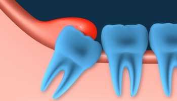 Ретинированные и сверхкомплектные зубы у детей