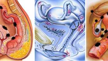 Эндометриоз можно ли забеременеть при нем
