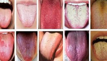 Сыпь на языке у ребенка причины