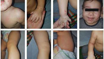 Клинические рекомендации энтеровирусная инфекция у детей